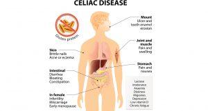 Celiac Disease chart