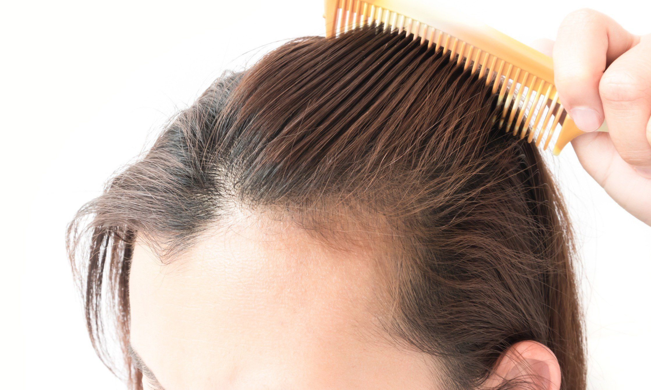 Quality Wholesale Natural Hair Products: Scalp Treatment