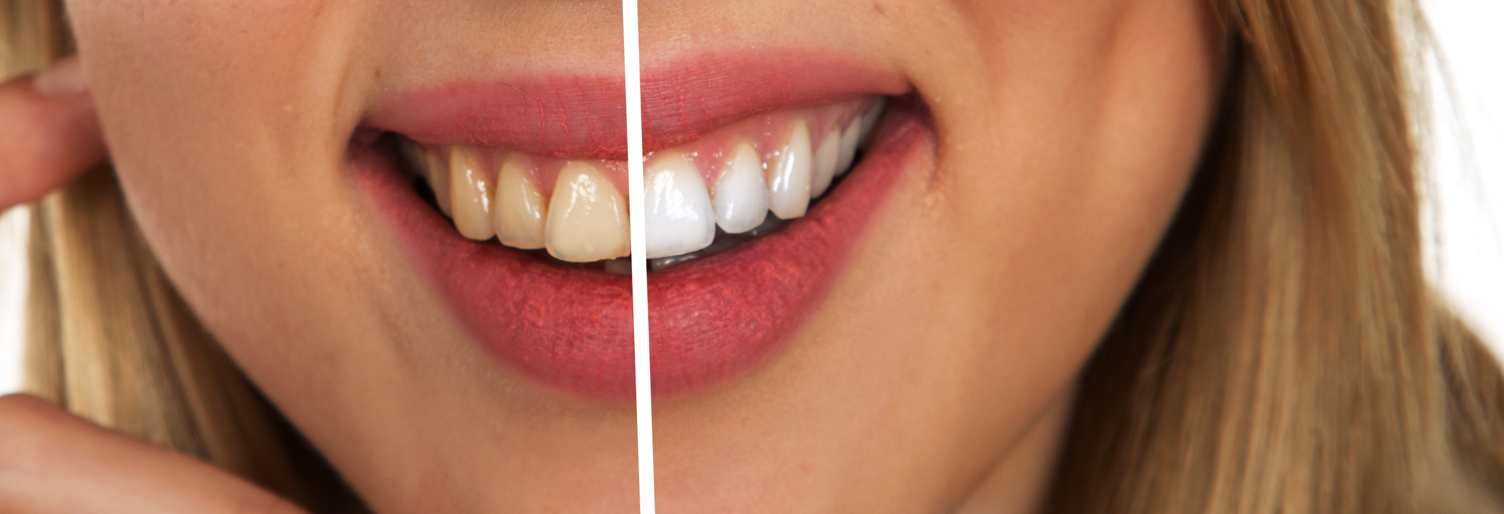 Selling whitening toothpaste will meet growing customer demand
